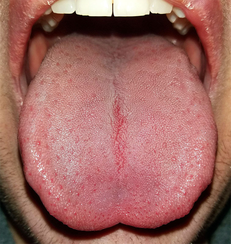 nyelv papillák okozzák hpv impfung todesfalle